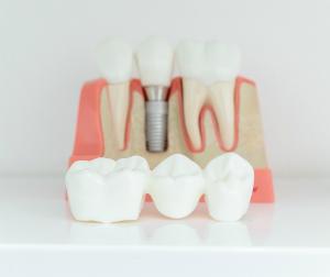 Dental Implant Model Bondi Beach