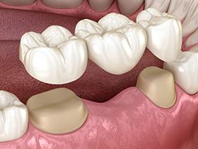 Dental Bridge at Dentist Mandy