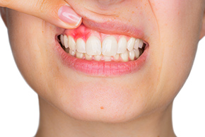 Dental Cleaning Bondi