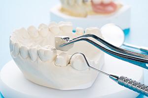 Dental Crown at Dentist Mandy