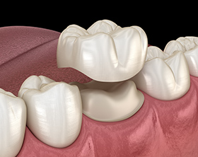 Dental Crowns Bondi