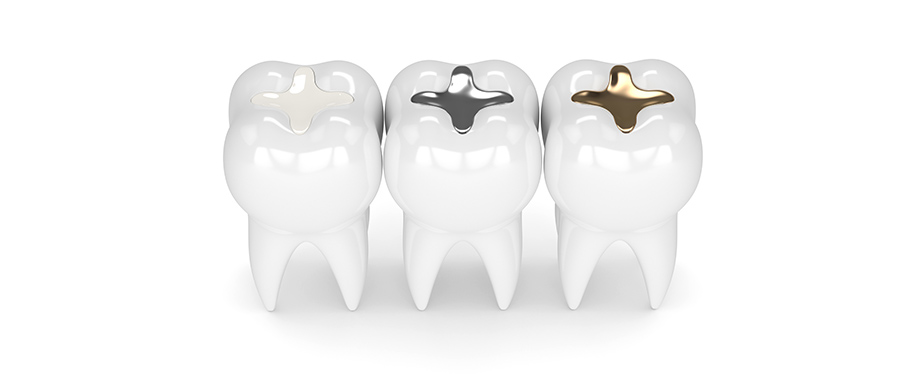 Dental Filling Materials Dentist Mandy
