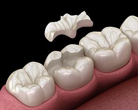 Dental Inlay Bondi