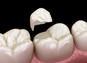 Dental Onlay Bondi