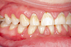 Why Composite Veneers
