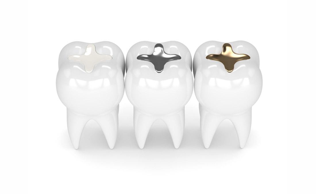 White Dental Filling Bondi Beach